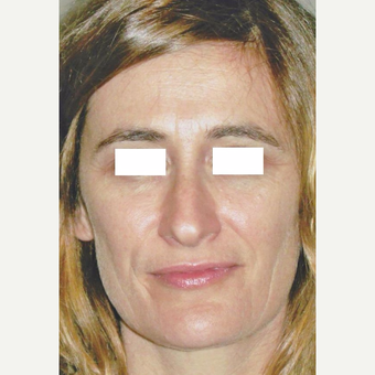 48 year old woman treated with Botox, Soft Lift and Filler before 3055566