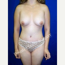 25-34 year old woman treated with Breast Implants after 3727484