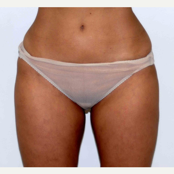 35-44 year old woman treated with Liposuction after 3378673