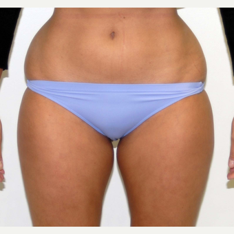 35-44 year old woman treated with Liposuction before 3378673