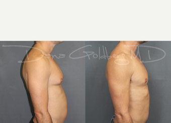 Male Breast Reduction before 3731564