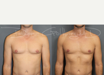 Male Breast Reduction after 3731564
