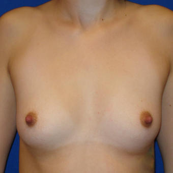 25-34 year old woman treated with Breast Augmentation before 3019456