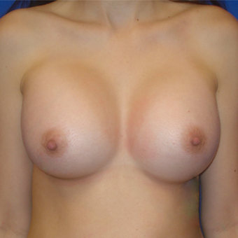 25-34 year old woman treated with Breast Augmentation after 3019456