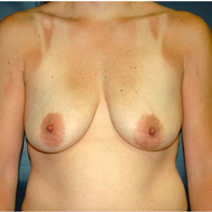 33 year old woman treated with Breast Lift with Implants before 3665997