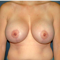 33 year old woman treated with Breast Lift with Implants after 3665997