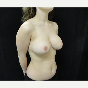 25-34 year old woman treated with Breast Lift with Implants after 3823197