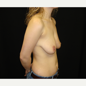 25-34 year old woman treated with Breast Lift with Implants before 3823197