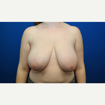25-34 year old woman treated with Breast Reduction before 3109872
