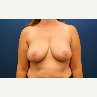 25-34 year old woman treated with Breast Reduction after 3109872