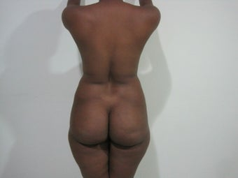 29 years old female treated with liposuction before 1000409