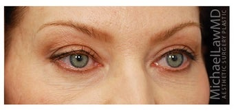Eye Bag Treatment after 1270463