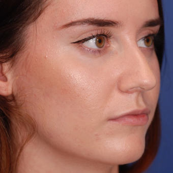 18-24 year old woman treated with Rhinoplasty before 3624141