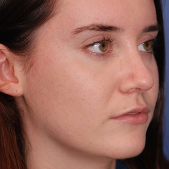 18-24 year old woman treated with Rhinoplasty after 3624141