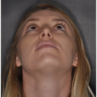 18-24 year old woman treated with Nose Surgery 1 year post-op after 3499852