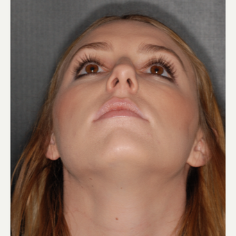 18-24 year old woman treated with Nose Surgery 1 year post-op before 3499852