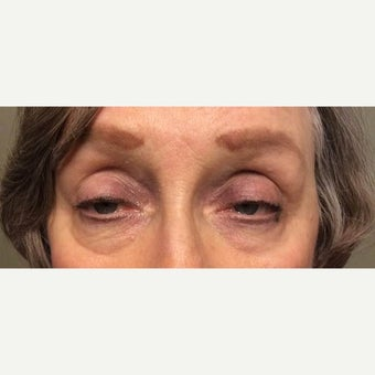 55-64 year old woman treated with Ptosis Surgery