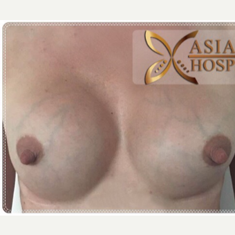 35-44 year old woman treated with Breast Implant Revision before 3649111