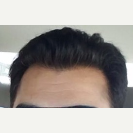 45-54 year old man treated with FUE Hair Transplant after 3777954