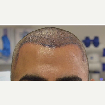 45-54 year old man treated with FUE Hair Transplant before 3777954