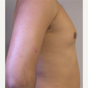 25-34 year old man treated with Pec Implants before 3093275