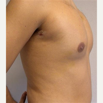 25-34 year old man treated with Pec Implants
