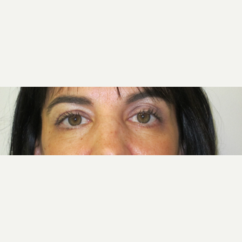 35-44 year old woman treated with Eyelid Surgery after 3305808