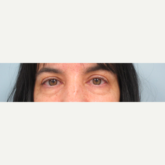35-44 year old woman treated with Eyelid Surgery before 3305808
