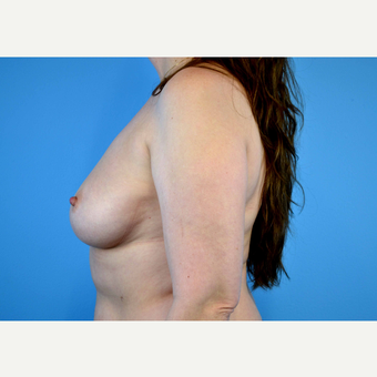 45-54 year old woman treated with Breast Implants before 3440084