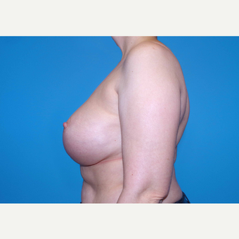 45-54 year old woman treated with Breast Implants after 3440084