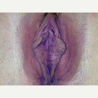 25-34 year old woman treated with Labiaplasty before 3401010