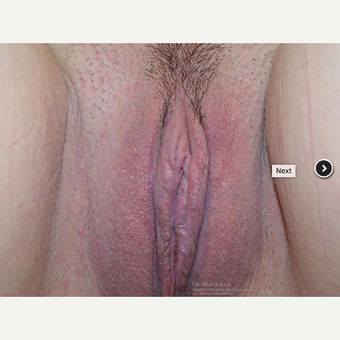 25-34 year old woman treated with Labiaplasty after 3401010