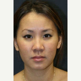 25-34 year old woman treated with Asian Nonsurgical Rhinoplasty