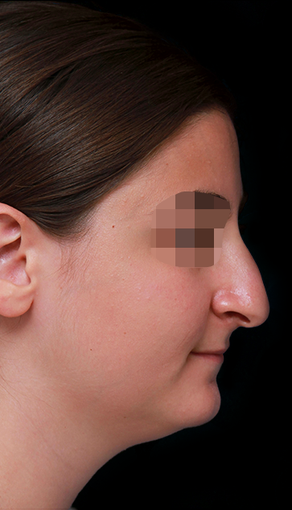 25-34 year old woman treated with Rhinoplasty before 3204712