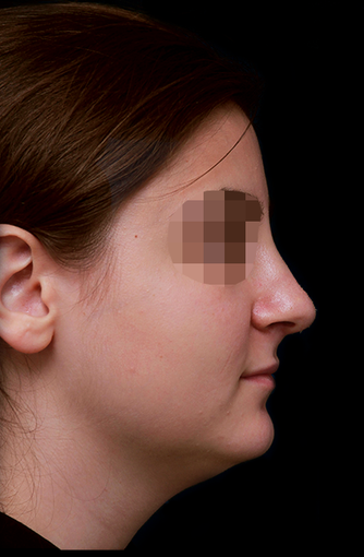 25-34 year old woman treated with Rhinoplasty after 3204712