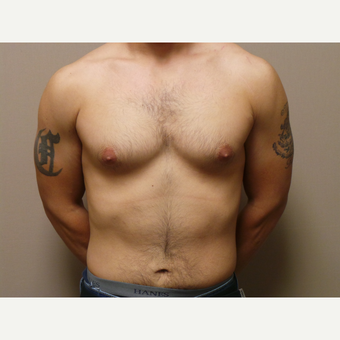25-34 year old man treated with Male Breast Reduction before 3454710