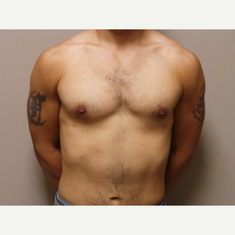 25-34 year old man treated with Male Breast Reduction after 3454710