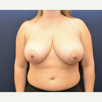 35-44 year old woman treated with Breast Reduction before 3726940