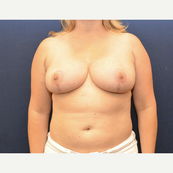 35-44 year old woman treated with Breast Reduction after 3726940
