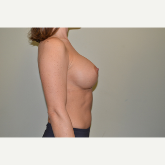 35-44 year old woman treated with 400cc mod+ sub pectoral implants - Breast Augmentation after 3671613