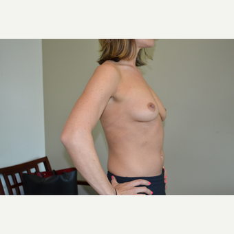 35-44 year old woman treated with 400cc mod+ sub pectoral implants - Breast Augmentation before 3671613