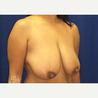 25-34 year old woman treated with Breast Lift with Implants before 3027982