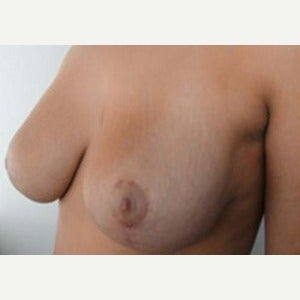 18-24 year old woman treated with Breast Reconstruction 1700270