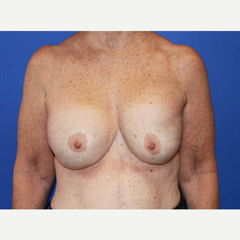 Remove & Replace Implants with Breast Lift before 3696103