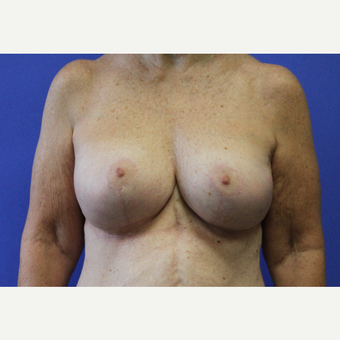 Remove & Replace Implants with Breast Lift after 3696103