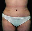 Panniculectomy after 2203947