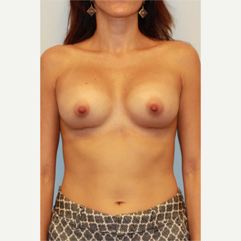 25-34 year old woman treated with Breast Implants after 3412678