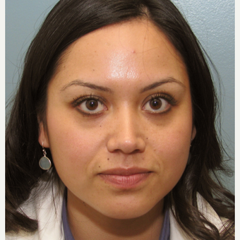 25-34 year old woman treated with Injectable Fillers using Radiesse and Botox before 3137257