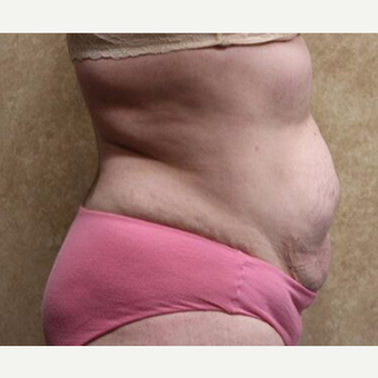 Tummy Tuck with Liposuction before 3454664