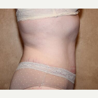 Tummy Tuck with Liposuction after 3454664
